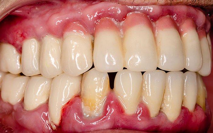Folgen von Zahnstein: Von Mundgeruch bis zum Herzinfarkt