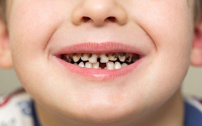 Schwarzer Zahnstein - Optischer Makel oder tatsächlich gefährlich?