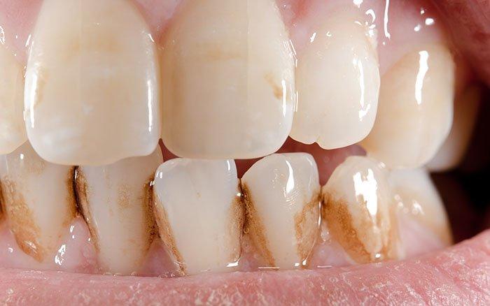 Was ist Zahnstein? Aus welchen Substanzen besteht er?