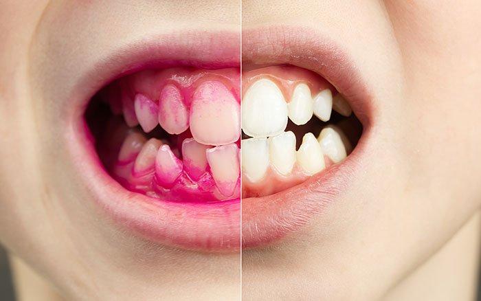 Zahnbelag sichtbar machen: So einfach funktioniert's