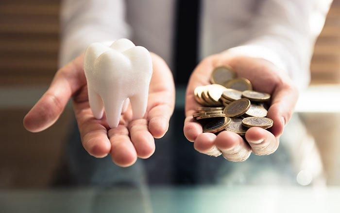 Professionelle Zahnreinigung: Wie hoch sind die Kosten für die Behandlung?